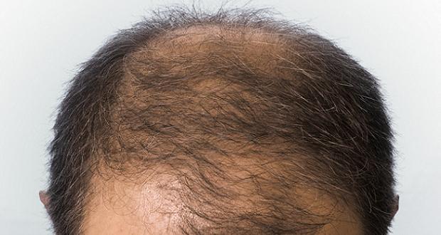 Les liens entre calvitie pr coce et cancer de la prostate for Belle coupe de cheveux homme calvitie
