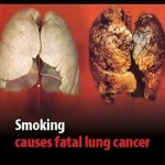 campagne anti-tabac 3