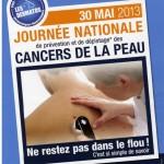 Dépistage cancer de la peau